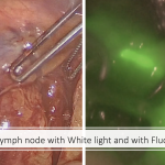 Sentinel Lymph Node with White Light and with Fluorescence