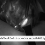 Parathyroid Gland Perfusion evaluation with NIR light and ICG